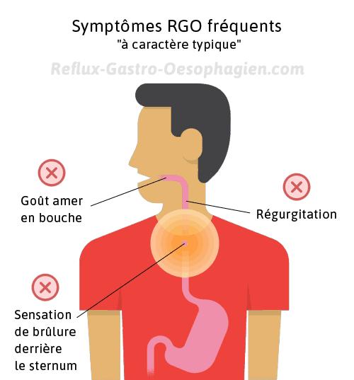 Reflux gastrique symptomes