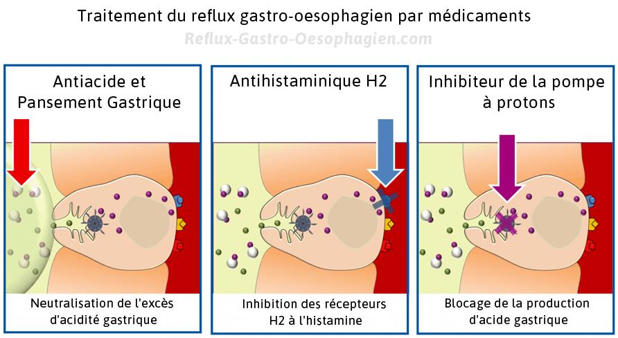 Traitement du reflux gastrique