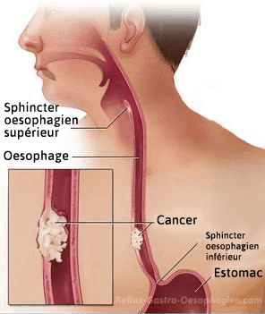 Cancer oesophage