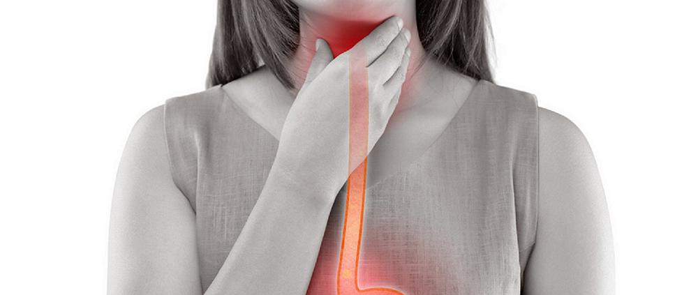 Reflux gastrique et mal de gorge