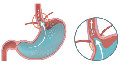 oesophagite peptique reflux gastrique