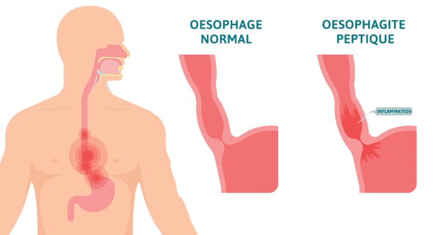 Oesophagite peptique par reflux